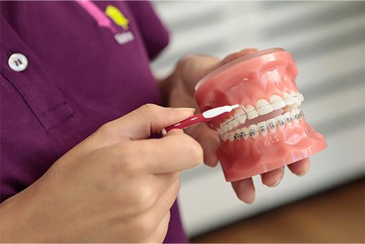 Max23 KFO Zahnpflege