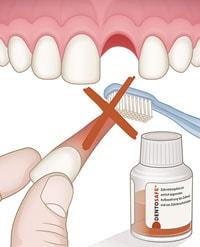 Max23 Zahnunfall - Dentosafe®